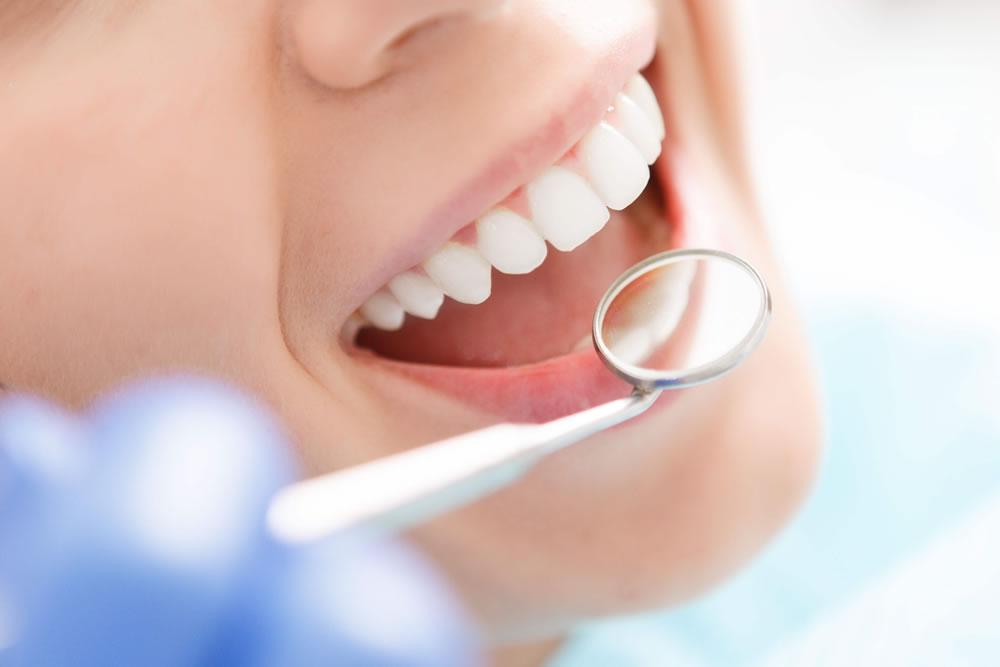 歯科検診・口腔ケア