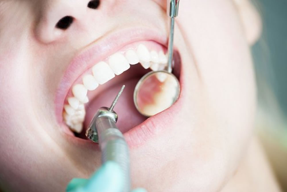 虫歯治療・歯周病治療