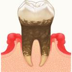 歯周病・歯周内科