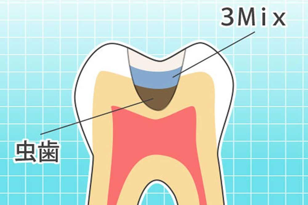 虫歯菌の無力化