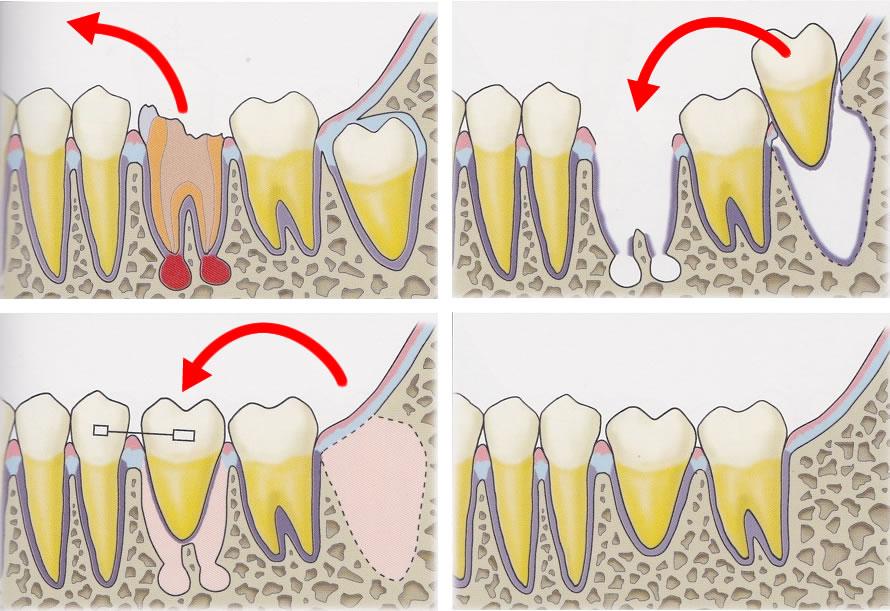 歯の移植・再植
