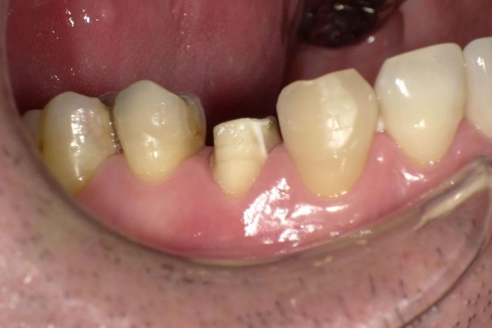 歯根膜と骨の結合