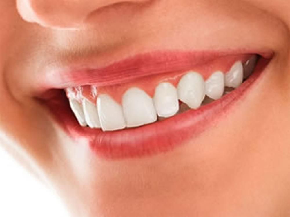 歯茎のホワイトニング